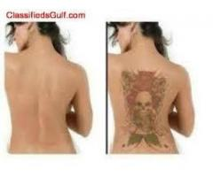 SCAR REMOVAL CREAM-TATTOO REMOVAL GEL AND DARK SPOTS (+27635694687)