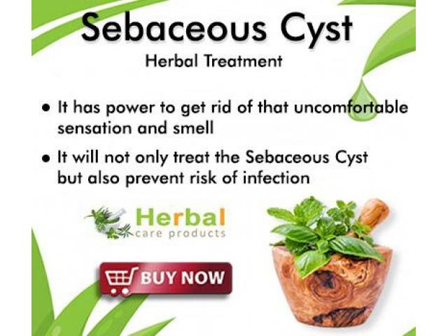 Herbal Treatment for Sebaceous Cyst