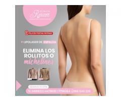 Disfruta una espalda sin rollitos - Clínica Renacer