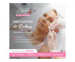 Implantes de relleno faciales.