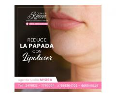 Reduce tu papada con lipolaser