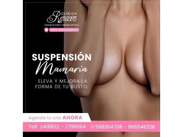 Elevación mamaria