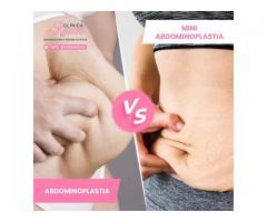 Abdominoplastia vs Miniabdominoplastia