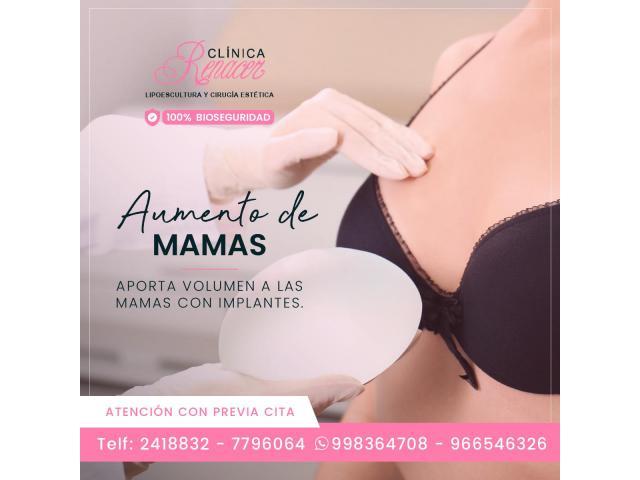Mamoplastia de Aumento.