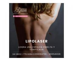 Define la espalda con Lipolaser.