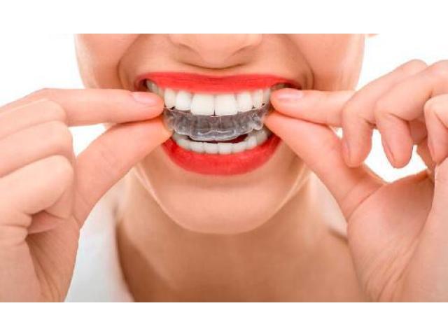 Vanilla Smiles Dental Clinic, Dubai