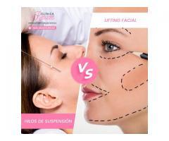 Lifting facial vs Hilos de suspensión