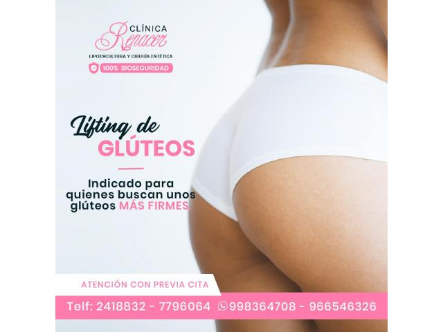 Lifting de glúteos