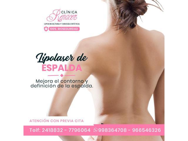 Lipolaser de espalda