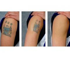 Tattoos and scars removal cream and oils for sale call +256777422022